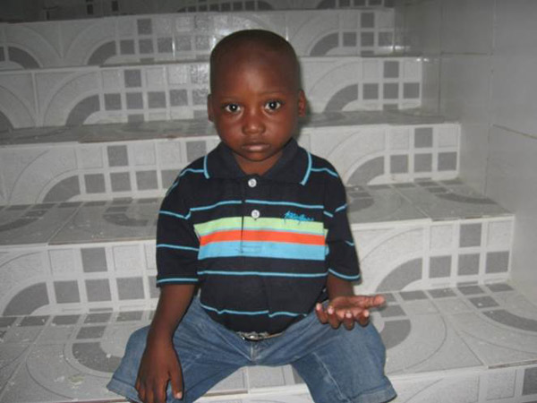 Same young boy AFTER receiving treatment.