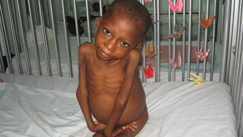 Young boy prior to receiving treatment for malnutrition.